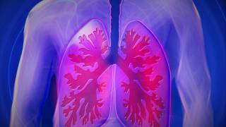 COPD lungs picture